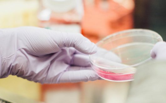 Research into drug repositioning for treatment of rare brain tumours
